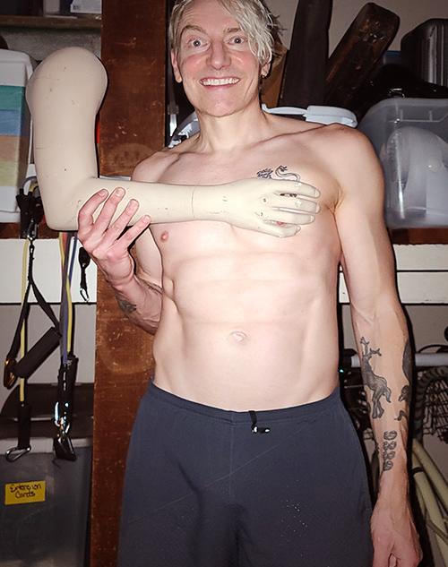 Scotch Wichmann with bonus arm